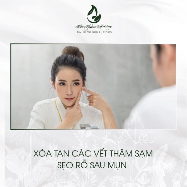 trị mụn thâm tại tphcm Mộc Thiên Hương
