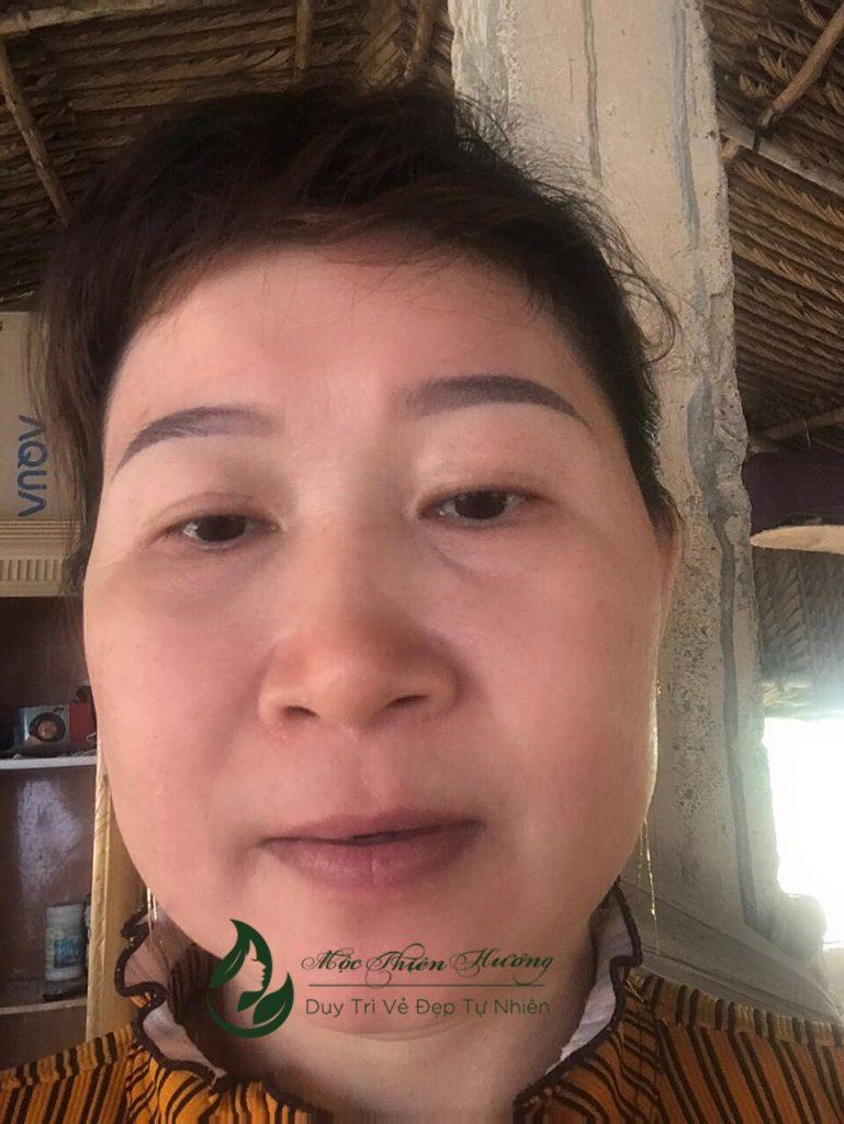 da sau khi sử dụng sản phẩm Mộc Thiên Hương.jpg