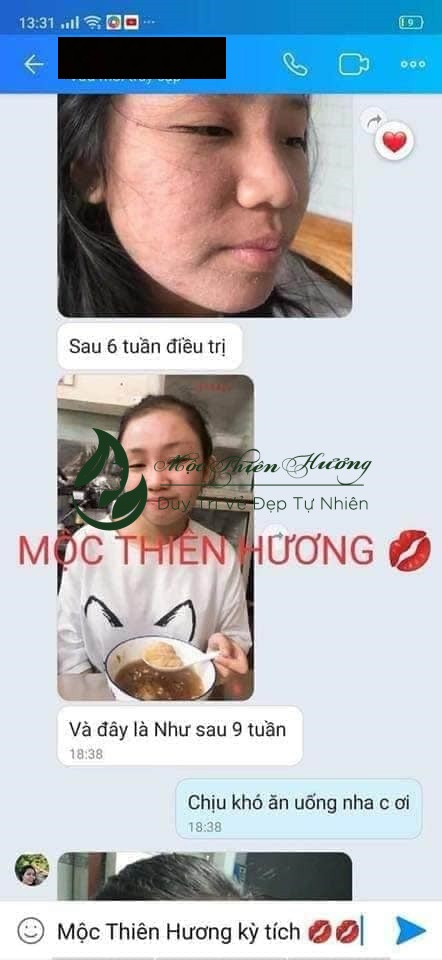 moc-thien-huong-bot-rua-mat