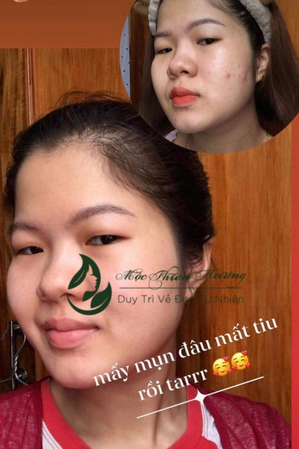 feedbackmun-moc-thien-huong