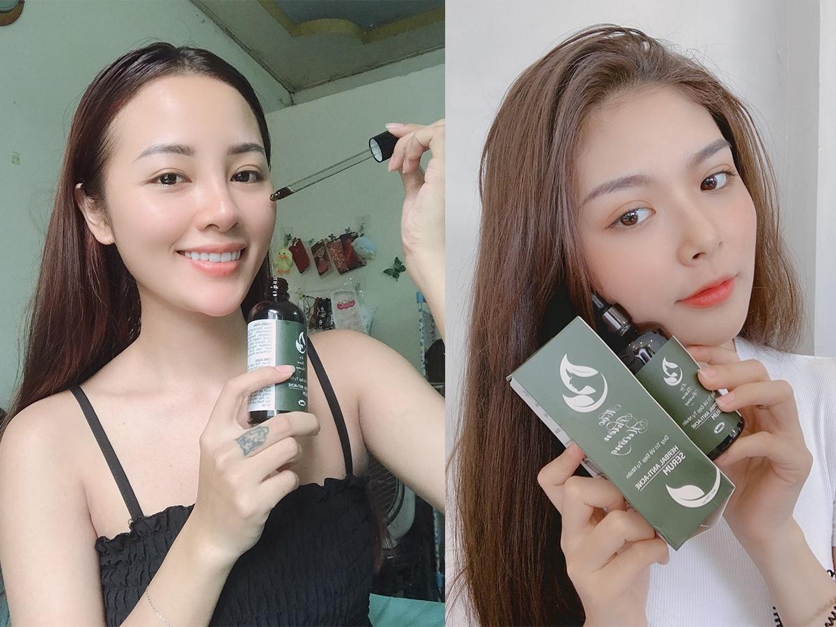 Dàn Beauty Blogger Chia Sẻ Bí Quyết Trị Mụn, Bảo Vệ Da